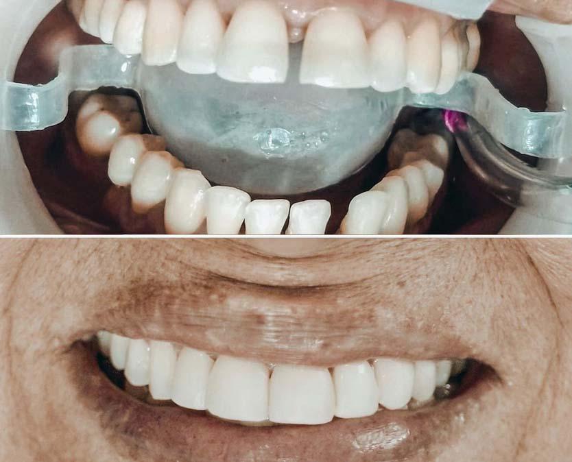 dracarolinaagudelo odontologia palmira especialistas ortodoncia