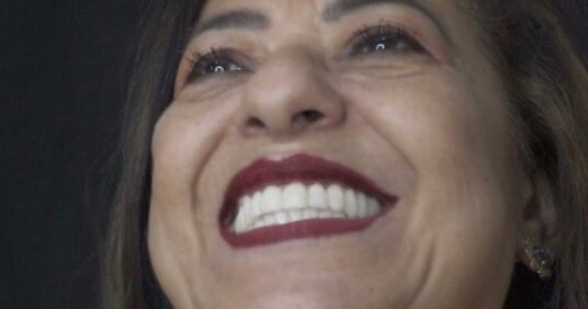 Sonrisa Glam